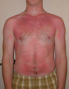 Superficial burn - sunburn